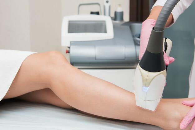 depilatory laserowe jaki wybrać